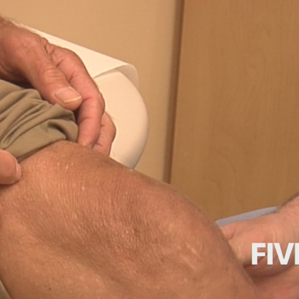 Knee replacement_91854