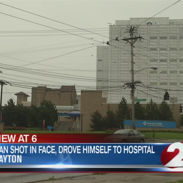 Man shot in the face shows up at hospital