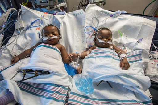 Conjoined Twins Tennessee_217908